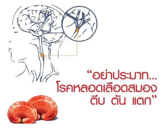 สปอร์จากสมุนไพรเห็ดหลินจือสรรพคุณทางยารักษาโรคหลอดเลือดสมองอุดตัน เส้นเลือดในสมองตีบ ไม่มีผลข้างเคียง