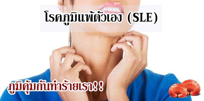 """สมุนไพรเห็ดหลินจือ """"สปอร์"""" สารทางยาวิธีรักษาโรคแพ้ภูมิตัวเอง SLE พุ่มพวง เพี้ยน ปรับภูมิคุ้มกันให้ปกติ"""