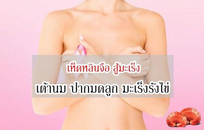 สปอร์เห็ดหลินจือสมุนไพรวิธีรักษา สู้มะเร็ง เต้านม ปากมดลูก รังไข่ ไม่มีผลข้างเคียง