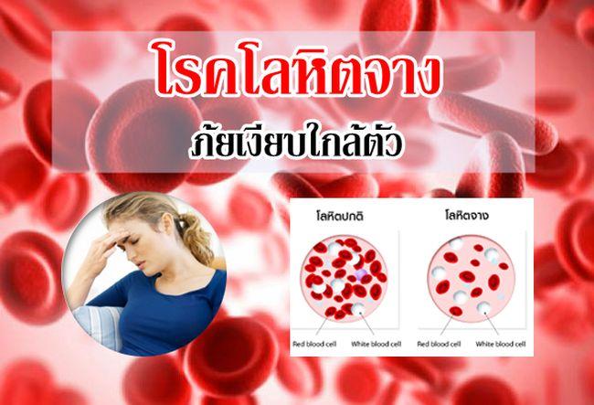 เห็ดหลินจือสมุนไพร สปอร์สารทางยาวิธีแก้รักษาโรคโลหิตจาง บำรุงเลือด