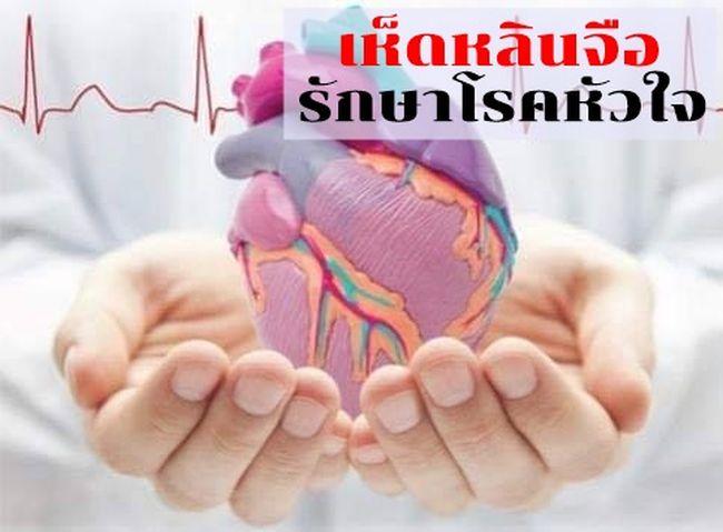 กินเห็ดหลินจือรักษาโรคหัวใจเต้นผิดจังหวะ ละลายลิ่มหลอดเลือดจริง